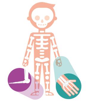Artrites Idiopáticas Juvenis - S.O.S Medicos - Taviclinica