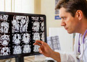 Neurologia   S.O.S Médicos Tavira