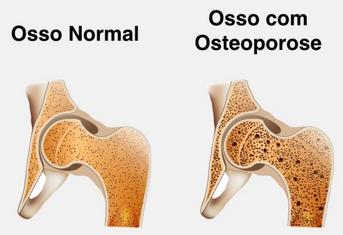 Osteoporose - S.O.S Medicos - Taviclinica