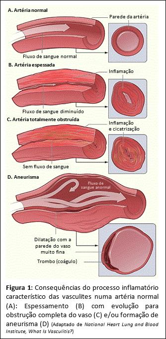 Vasculites - S.O.S Medicos - Taviclinica